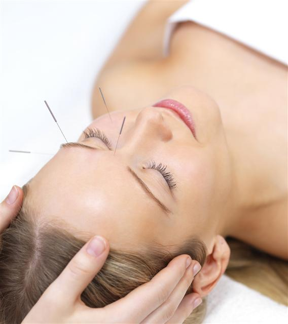 Acupunture for health
